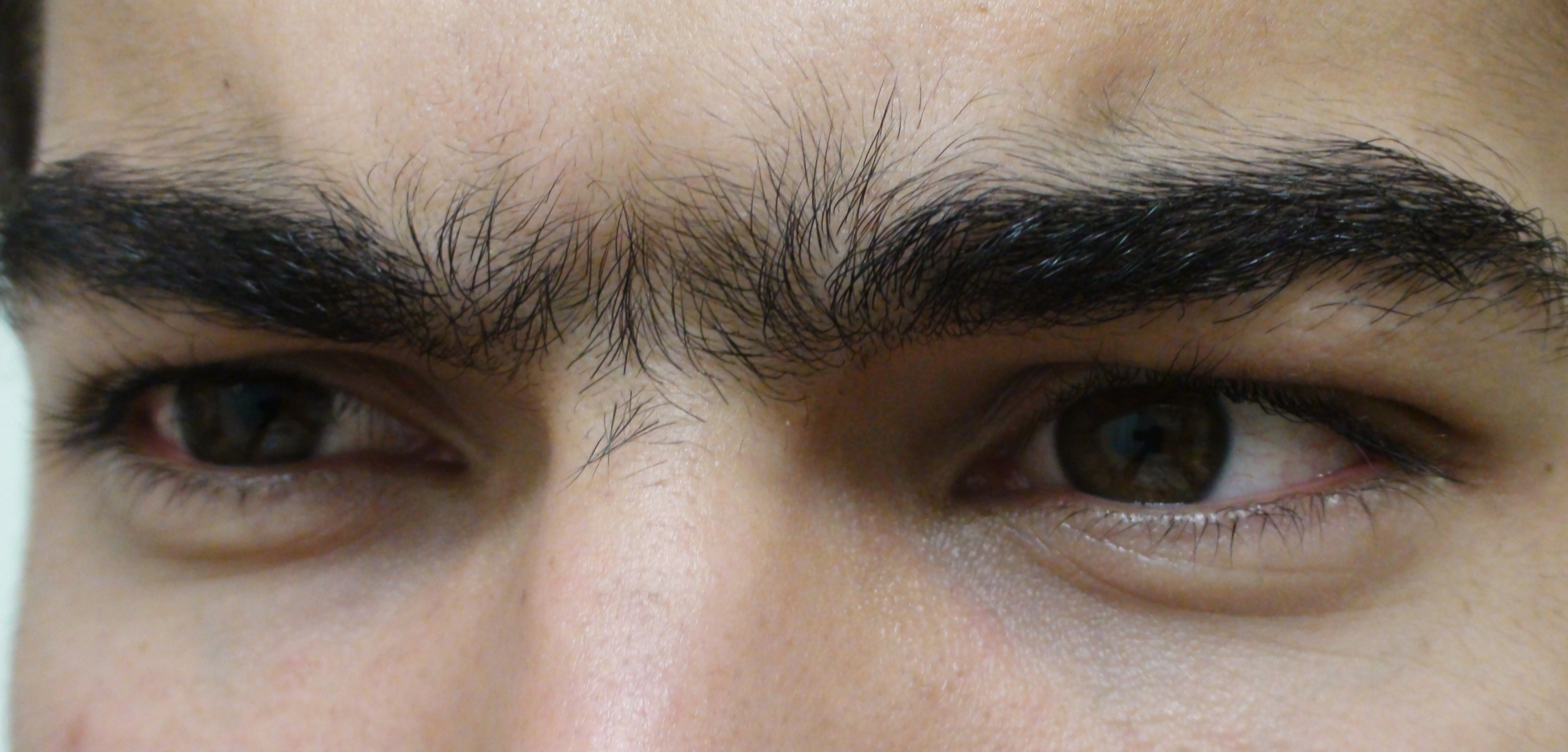 Unibrow_Close_Up